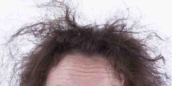 علاج تقصف الشعر من الامام بالاعشاب