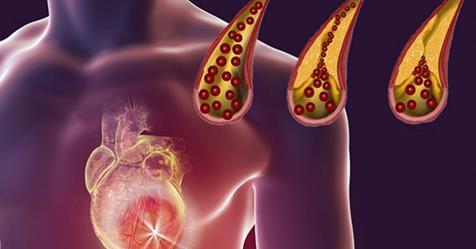 5 Alimentos que debes comer diario para limpiar tus Arterias!