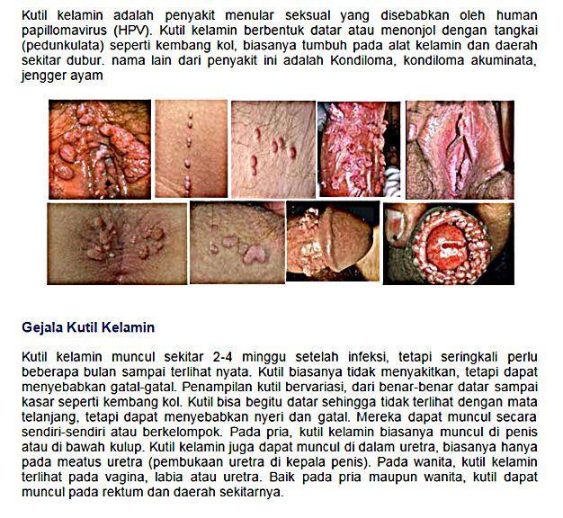 Obat Kutil Kelamin Di Kalimantan Tengah,Obat Kutil Kemaluan Di Blora,Cara Mengobati Kutil Kelamin Di Asahan,Cara Mengatasi Kutil Kelamin Di Kota Surakarta,Pengobatan Kutil Kelamin Di Bangka Belitung,Cara Menghilangkan Kutil Kelamin Di Sumatera Barat,Pengobatan Kutil Kemaluan Di Mamberamo Raya,Obat Kutil Kelamin Tanpa Operasi Di Teluk Bintuni,Obat Kutil Kelamin Herbal Di Kalimantan Timur,Obat Kutil Kelamin Di Apotik Di Kalimantan Barat,Obat Kutil Kemaluan Di Kediri,Pengobatan Kutil Kemaluan Di Kepulauan Meranti,Obat Kutil Di Sekitar Kelamin,Obat Kutil Di Sekitar Kemaluan,Obat Kutil Di Sekitar Penis,Obat Kutil Di Sekitar Vagina,Cara Mengobati Kutil Di Sekitar Kelamin,Cara Mengatasi Kutil Di Sekitar Kelamin,Cara Menghilangkan Kutil Di Sekitar Kelamin