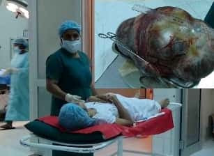 Doctors remove mammoth tumour weighing 14 kilo