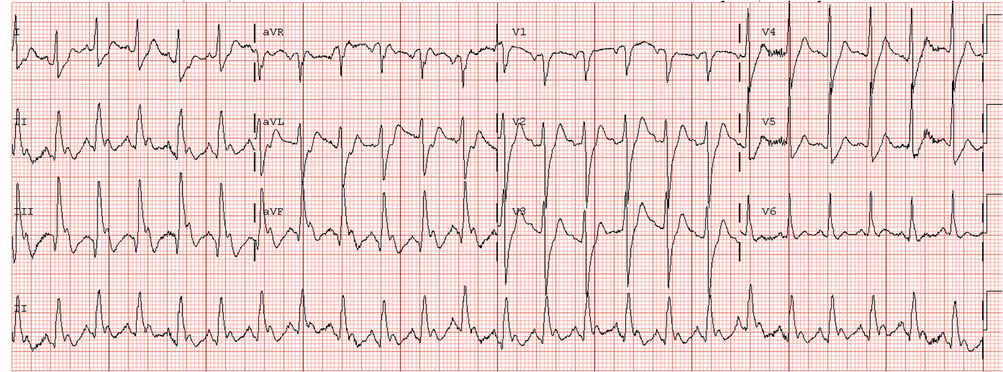 Dr Smith S Ecg Blog Acute Severe Pulmonary Edema What Is The