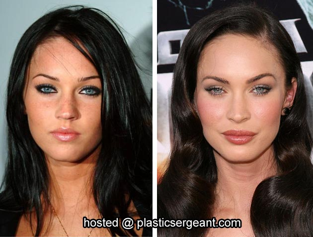 picture gallery hollywood stars megan fox before and after plastic