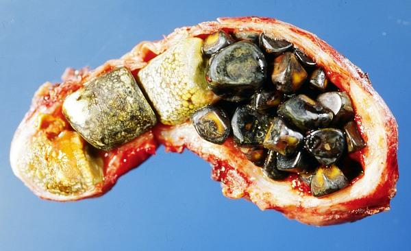 Penyebab,Gejala:Cara Mengatasi Batu Empedu Menggunakan Herbal
