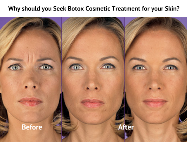 Why should you Seek Botox Cosmetic Treatment for your Skin?