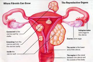 fibroid tumbuh di mana