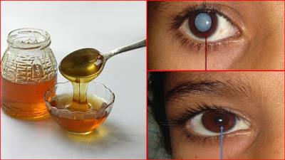 Only Honey For Treating Eye Diseases