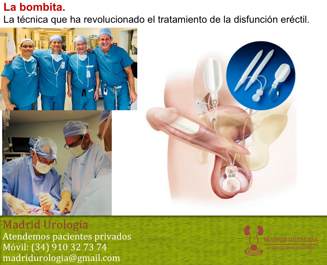 prótesis de disfunción eréctil vjdeo