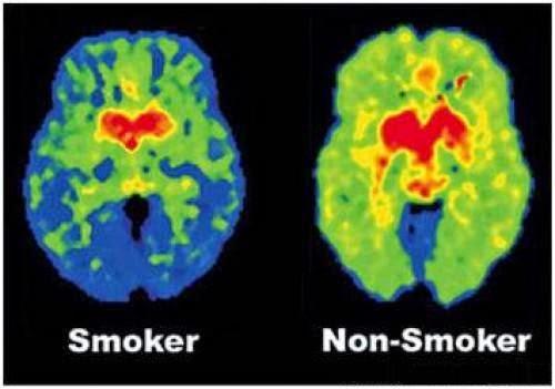 Уровень дофамина у здоровых людей и у курильщиков
