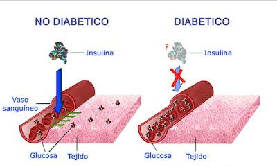 Diabetes Mellitus Clasificacion