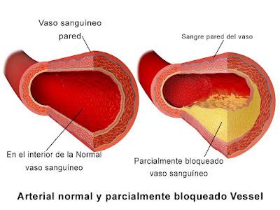 La Ateroesclerosis