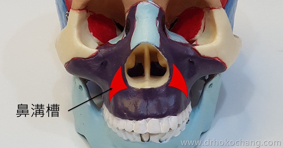 台中墊鼻溝槽法令紋手術|複合式墊鼻溝槽手術打擊深深法令紋-paranasal02