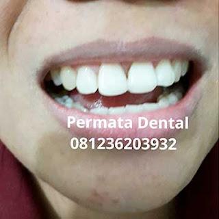 gambar foto gigi patah cuil setelah di veneer