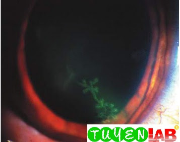 Slit-lamp view of a dendritic ulcer with uorescein uptake from herpetic keratitis