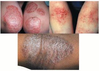 Cara menyembuhkan eksim kering kulit jadi hitam dan gatal