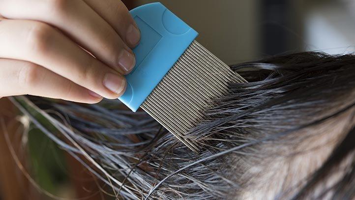 كيفية إزالة ومنع القمل؟ نصائح لكل ما تحتاج إلى معرفته للحفاظ على شعرك بعيدا من القمل