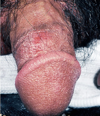 """Nonspecific"" superficial ulcerative lesion due to subclinical recurrent herpes"