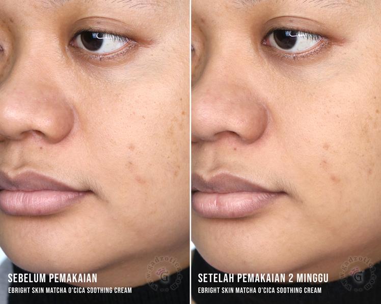 Before After eBright Skin Matcha Cream