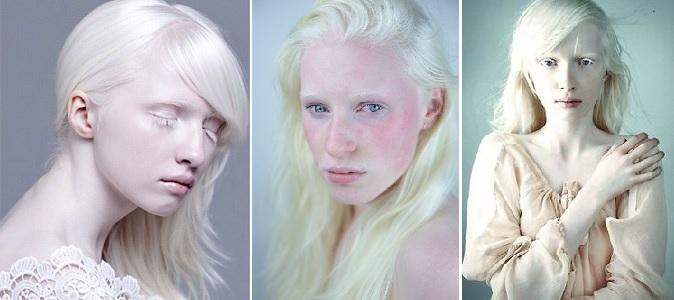 Znalezione obrazy dla zapytania albinizm