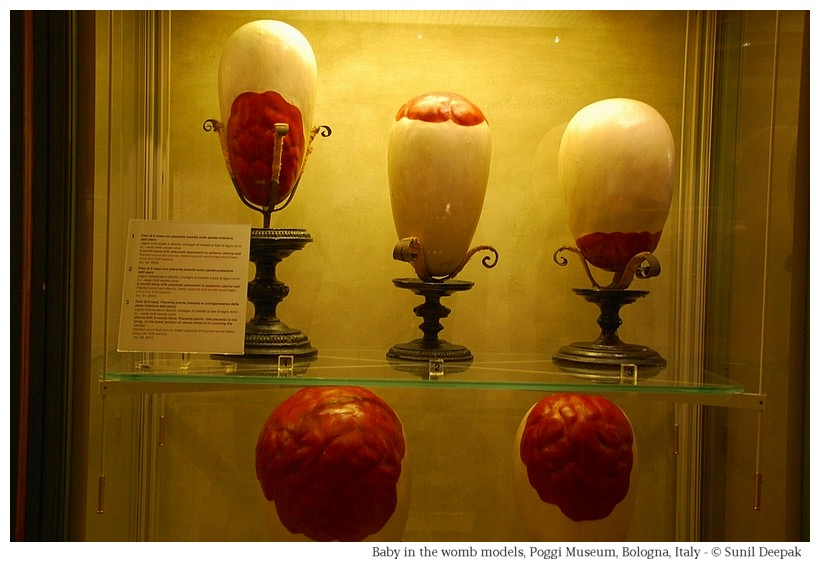 Models showing position of placenta in the uterus, at Palazzo Poggi of Bologna, Italy - Image by Sunil Deepak
