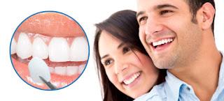 Bọc răng sứ veneer thực hiện dễ không?