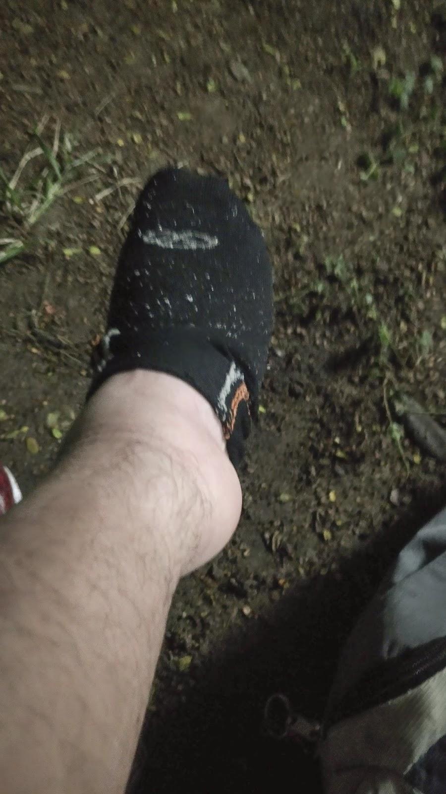 inchaço persistente no tornozelo e panturrilha após cirurgia no pé há quanto tempo