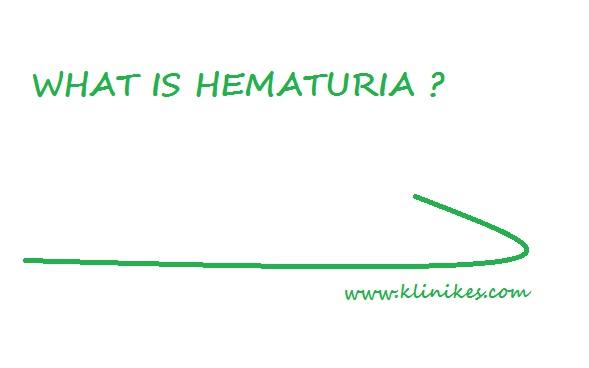 Mengenal Penyakit Hematuria, Penyebab dan Jenis Tipenya