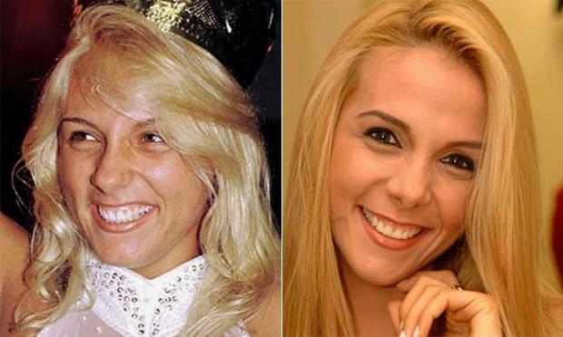 Carla Peres antes e depois da cirurgia no nariz