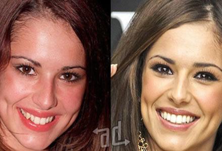 dientes Cheryl Cole