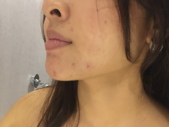 singapore before and after facial