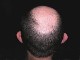 rawatan rambut gugur