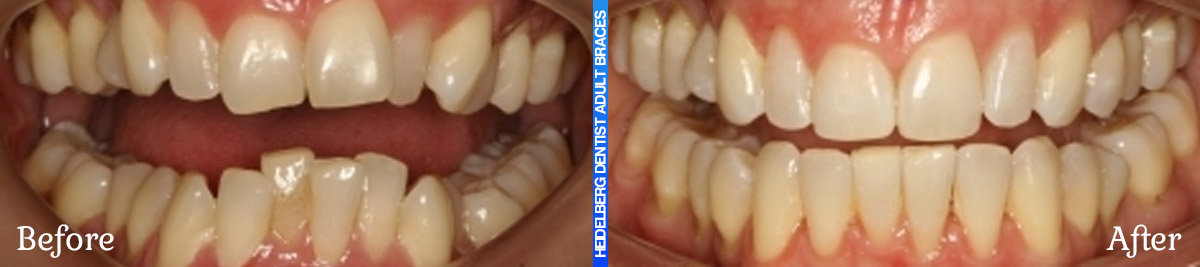 Adult Braces Melbourne Before & After Smile Gallery