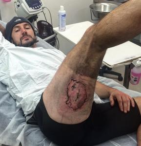 Homem sofre queimadura grave após iPhone 6 'explodir' em sua coxa direita