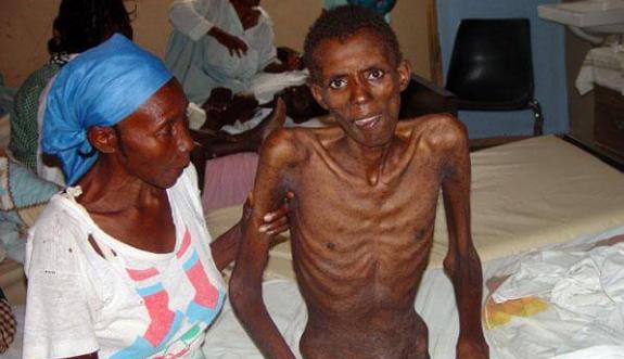 Ciri-Ciri Orang Terkena HIV AIDS