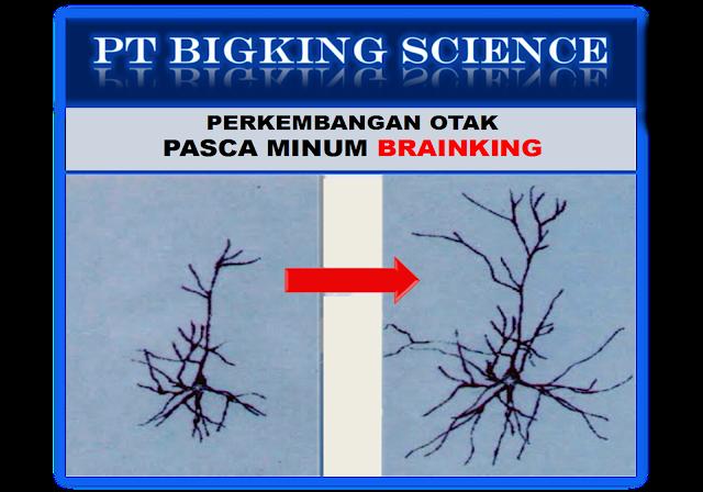 Testimoni Brainking Plus Jantung, Testimoni Penyakit Jantung, Brainking Plus Testimoni Penyakit Jantung, Testimoni Brainking Penyakit Jantung, Herbal Jantung, Herbal Penyakit Jantung, Obat Penyakit Jantung, Obat Jantung, Herbal Jantung International