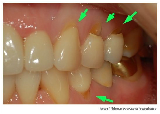 tooth brush abrasion if you see this on your teeth you need to go