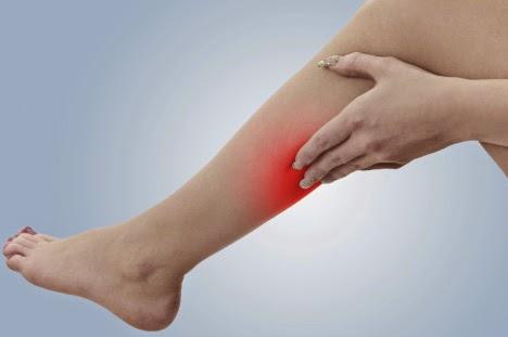 como eliminar las varices en las piernas