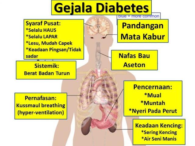 Mengenal Penyakit Gula Mulai dari Penyebab, Gejala Hingga Cara Mengatasinya