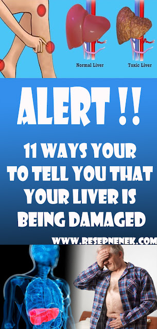 11 WAYS YOUR TO TELL YOU THAT YOUR LIVER IS BEING DAMAGED