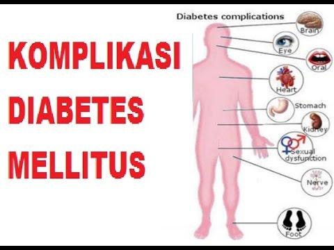 komplikasi diabetes adalah