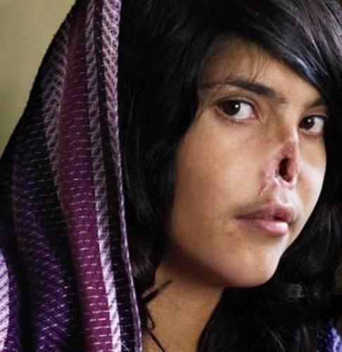 Ανθρωπόμορφο ζώο από το Αφγανιστάν έκοψε την μύτη της γυναίκας του!