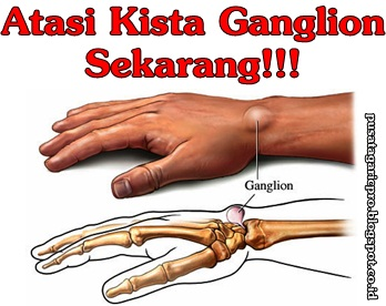 Obat Kista Ganglion