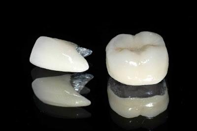 những điều cần biết về bọc răng sứ -7