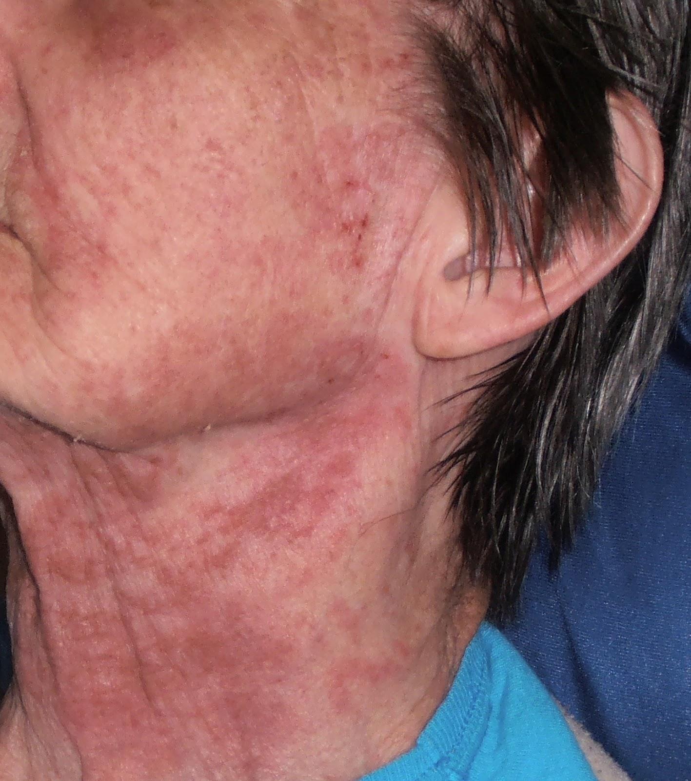 Erbitux rash