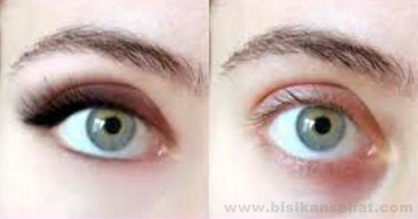 Cara Menghilangkan Cembung Pada Kulit Mata - www.bisikansehat.com