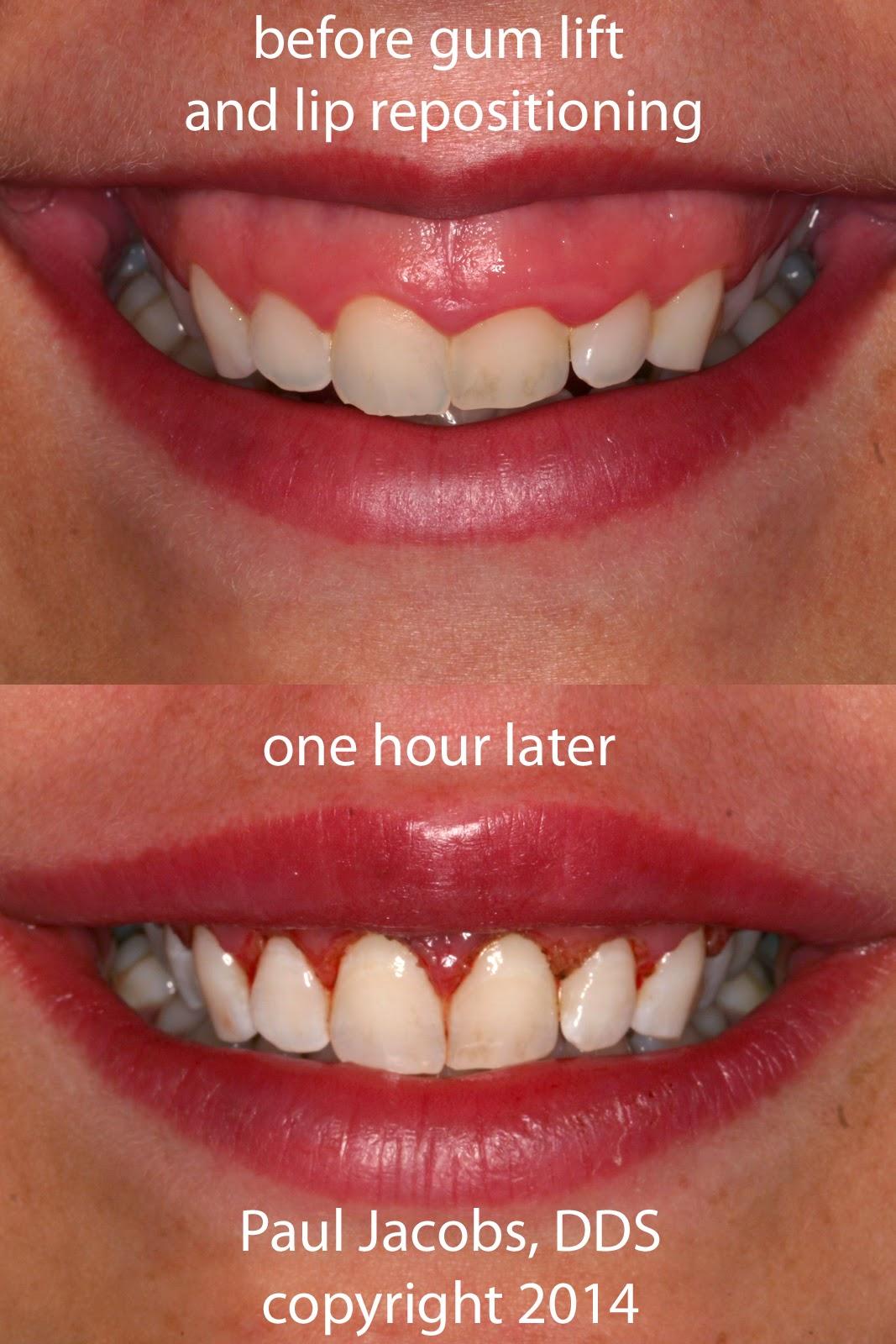 Dental Nation
