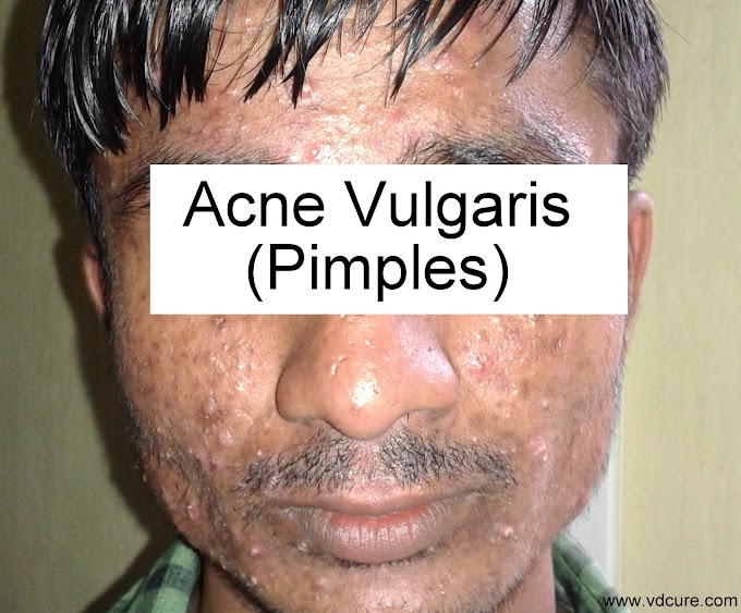 Best medicines for Pimples or Acne avilable in the market.