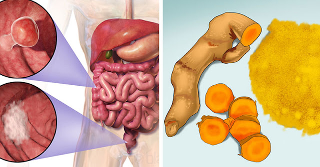 Turmeric Is A Potent Inflammation And Cancer Fighter: How Much You Should Take And How Often