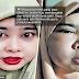 Muka bengkak, merah dan gatal selepas guna produk kecantikan yang dibeli secara online