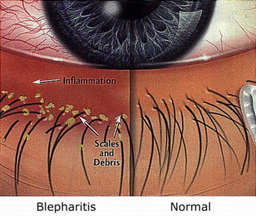 809c389783c What is the difference between Bleph and an Allergy? Allergies present  themself within 48 hours after the application of eyelash extensions.