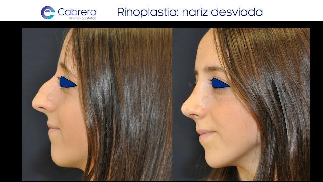 Caso antes y después 5 Rinoplastia Córdoba